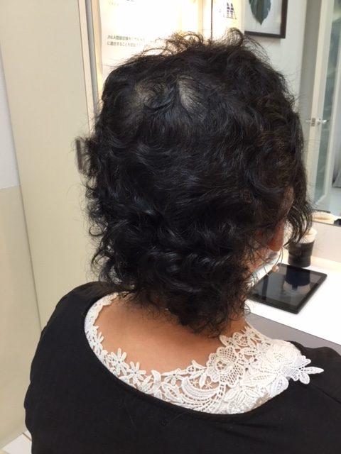 抗がん剤治療後のくせ毛をストレートにしてシールエクステをつけて自毛デビュー