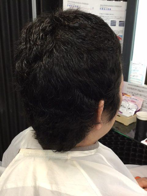 3センチくらいの自毛にシールエクステを付けてウィッグ卒業!抗がん剤治療後の再生毛のお手入。