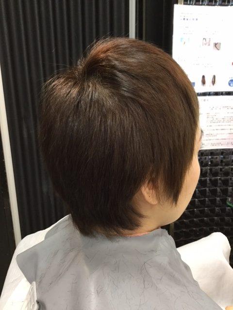 抗がん剤治療後の短い前髪にシールエクステを付けてウィッグ卒業!自毛デビュー!写真あり