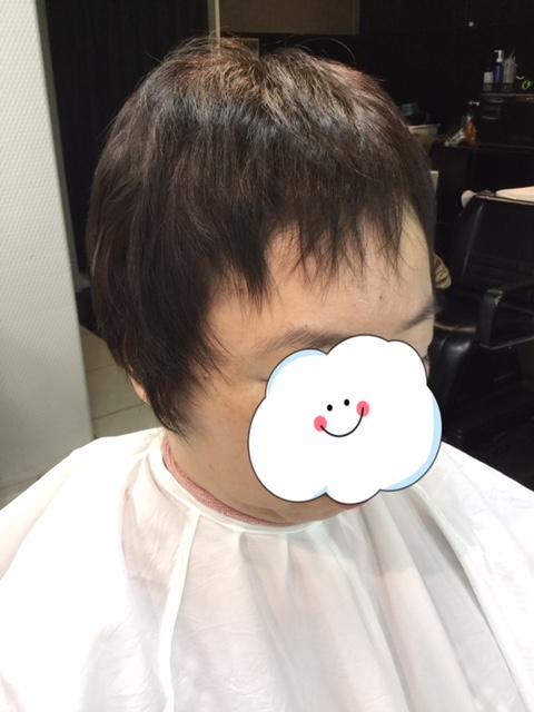 抗がん剤後の短い前髪(伸びない前髪)にシールエクステをつけて自毛デビュー!