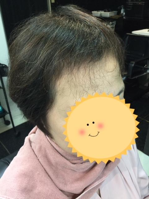 こんなに変わる⁉︎薄い前髪にシールエクステをつけて大変身!