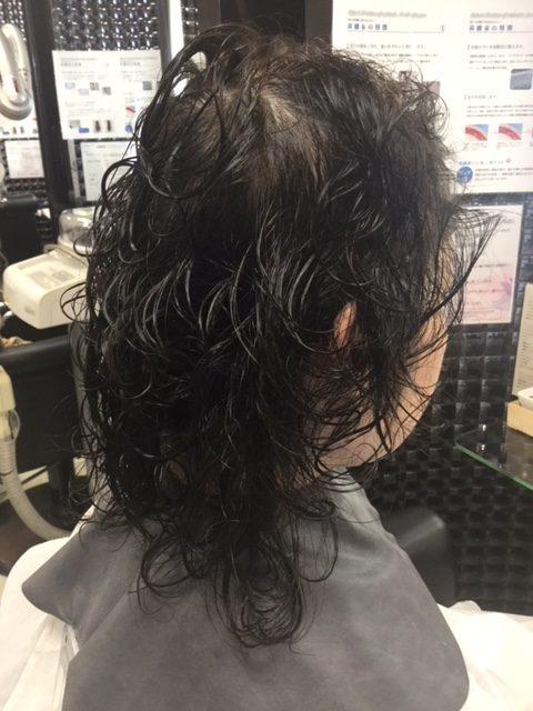 抗がん剤治療後のくせ毛にストレートパーマで自毛デビュー!