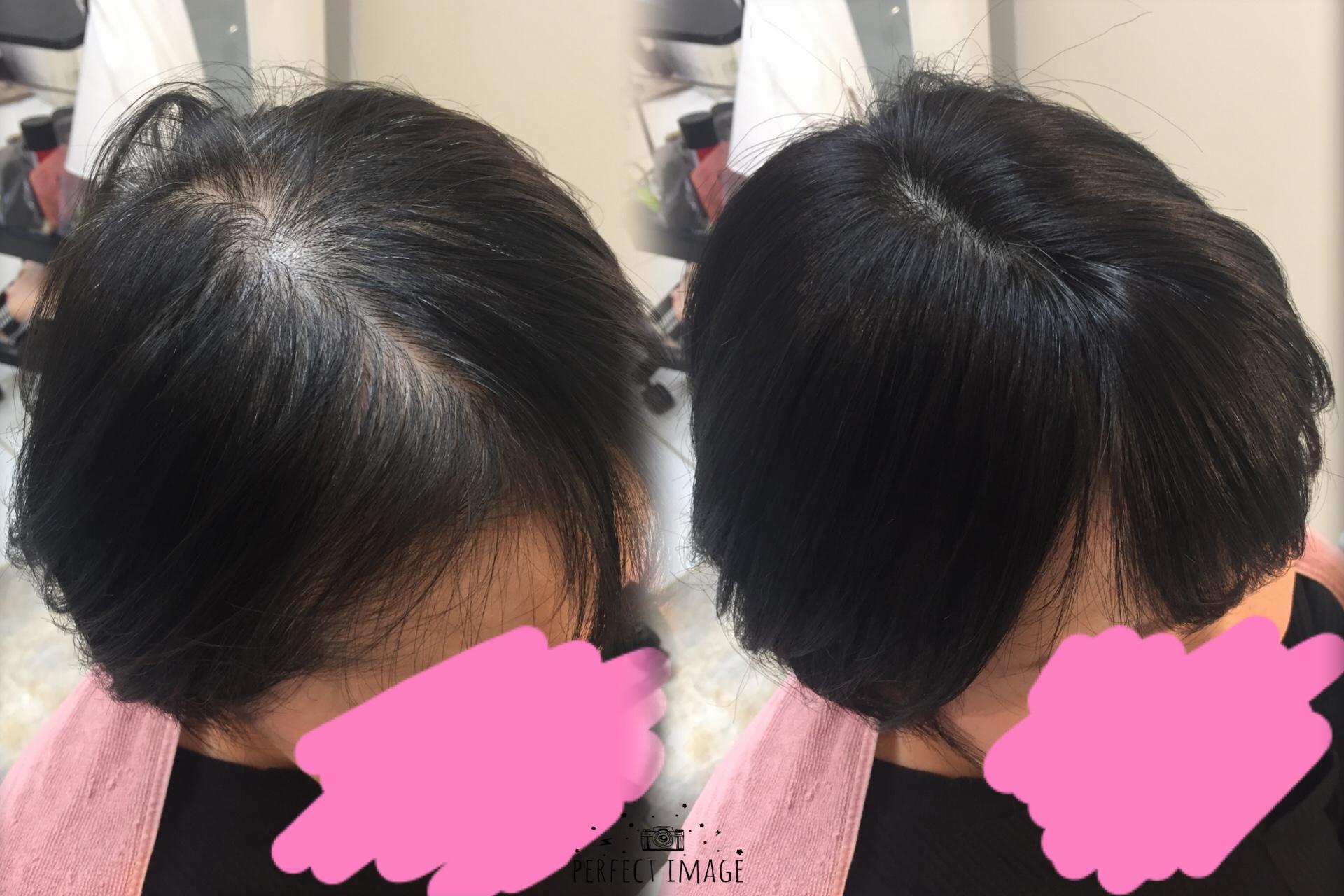 治療後のトップが伸びない?!解決♡白髪隠しにもなる自然なトップピース!!
