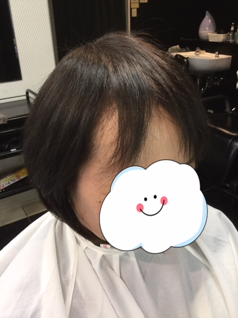 抗がん剤治療後の自毛にカット、カラー、シールエクステで前髪ボリュームアップ!