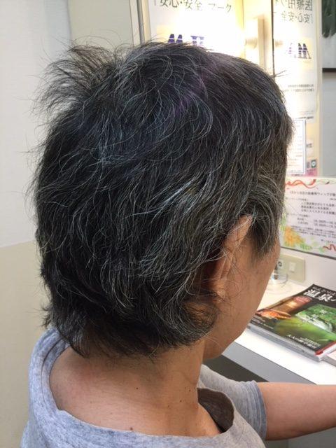 抗がん剤治療後の自毛にカット、カラー、ストレートパーマ、シールエクステのフルコース