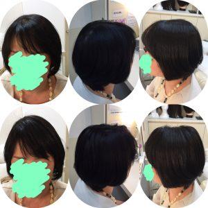 橋本病による頭皮の湿疹で脱毛。。トップピースで解決♡