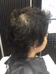 抗がん剤治療後の地毛にストレートパーマ&シールエクステを付けてみました。