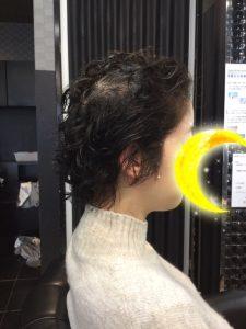 抗がん剤治療後の自毛にストレートパーマ、カット、そしてトップピースを付けました